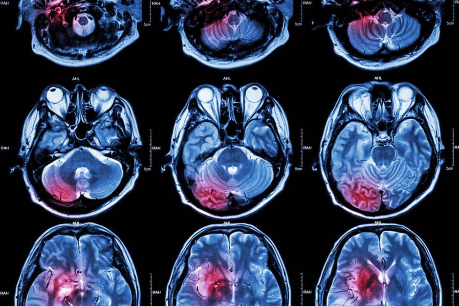 Resonancias magnéticas muestran diversos problemas en el cerebro de los pacientes. (iStock)