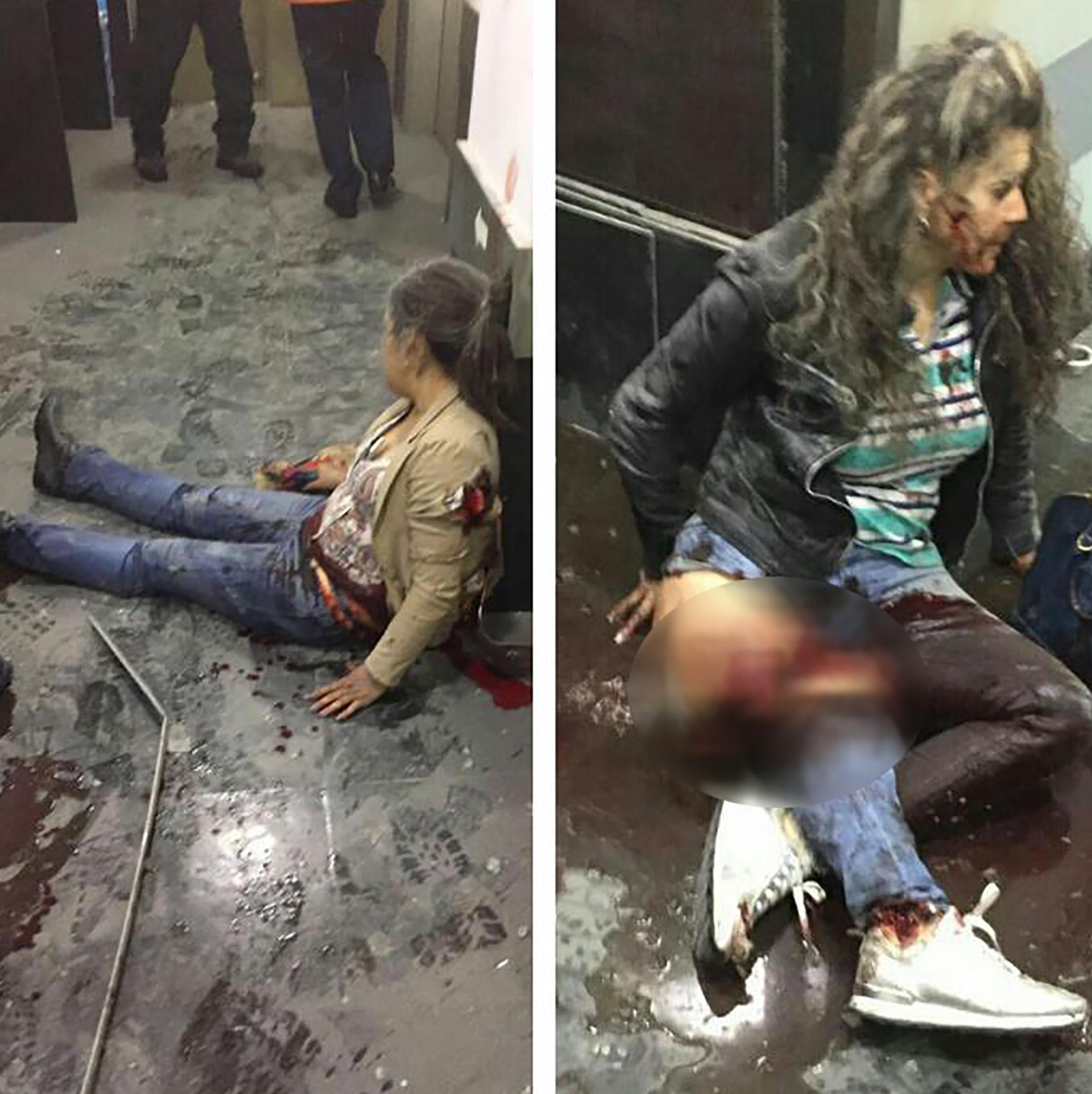 Personas heridas tras la explosión. (@demokrato)