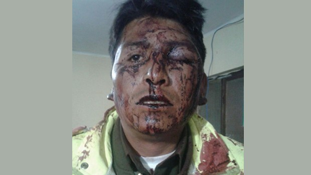 Chofer de minibús ebrio propinó una tremenda paliza a un policía en El Alto