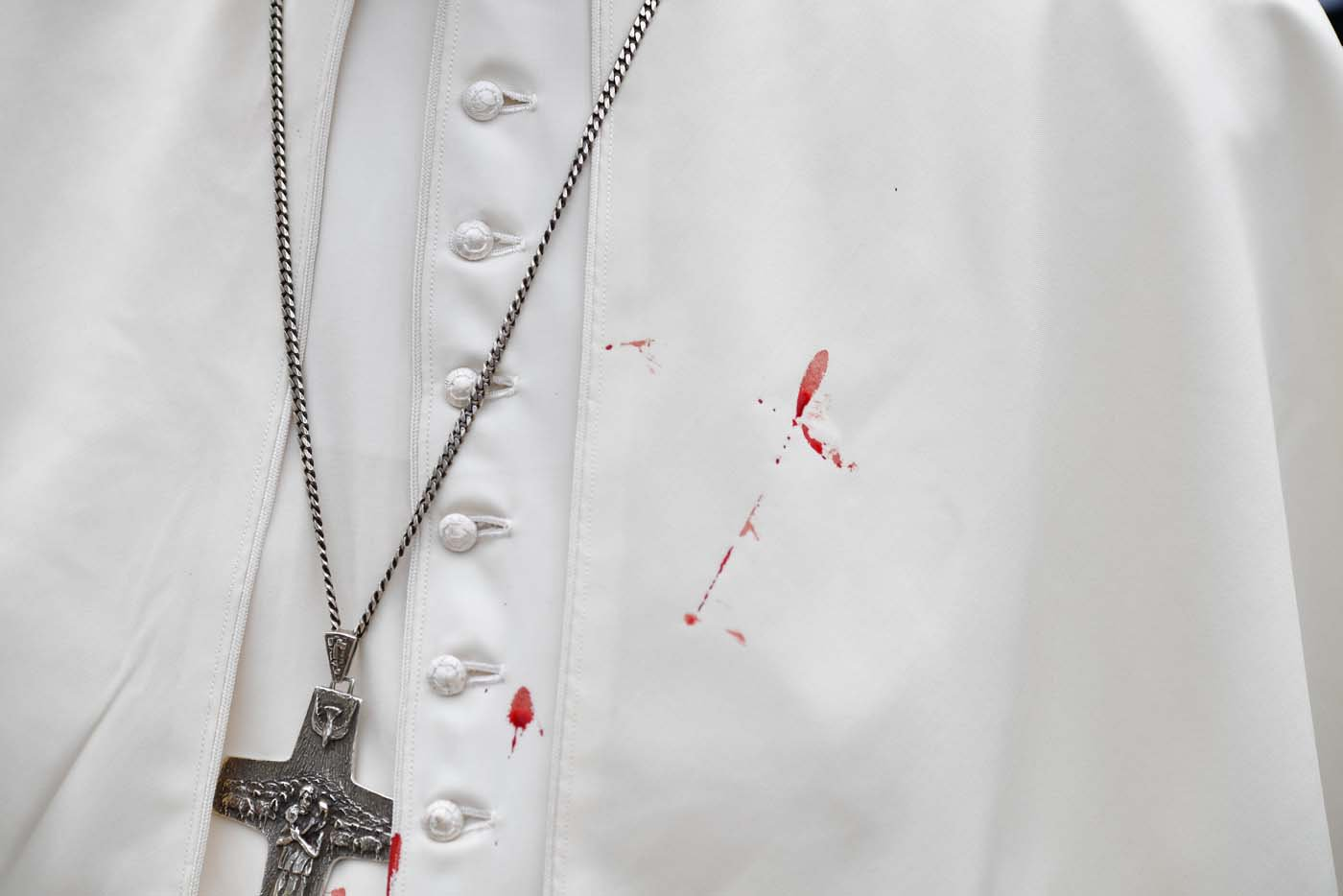 A few droplets of blood stain Pope Francis