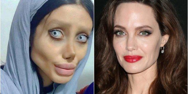 "Joven iraní se hace 50 cirugías para parecerse a Angelina Jolie"""