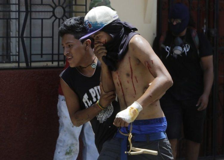 La represión del régimen de Ortega dejó cientos de muertos y miles de heridos(AFP PHOTO / INTI OCON)