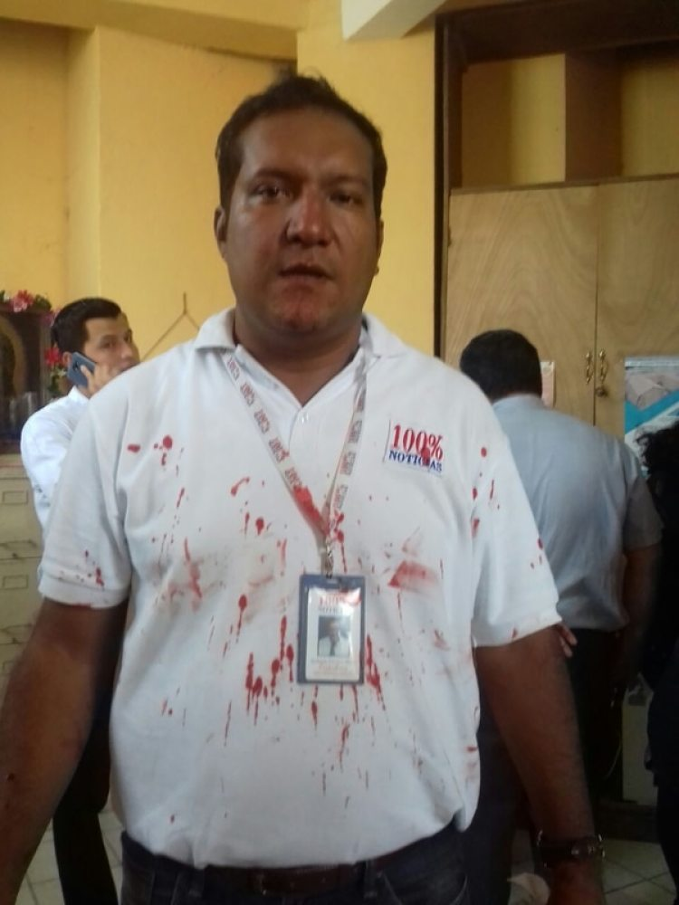 Periodistas también fueron agredidos