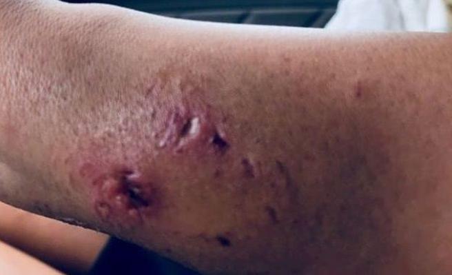 Así quedó el brazo de Katarina Zarutskie tras ser mordida por el tiburón