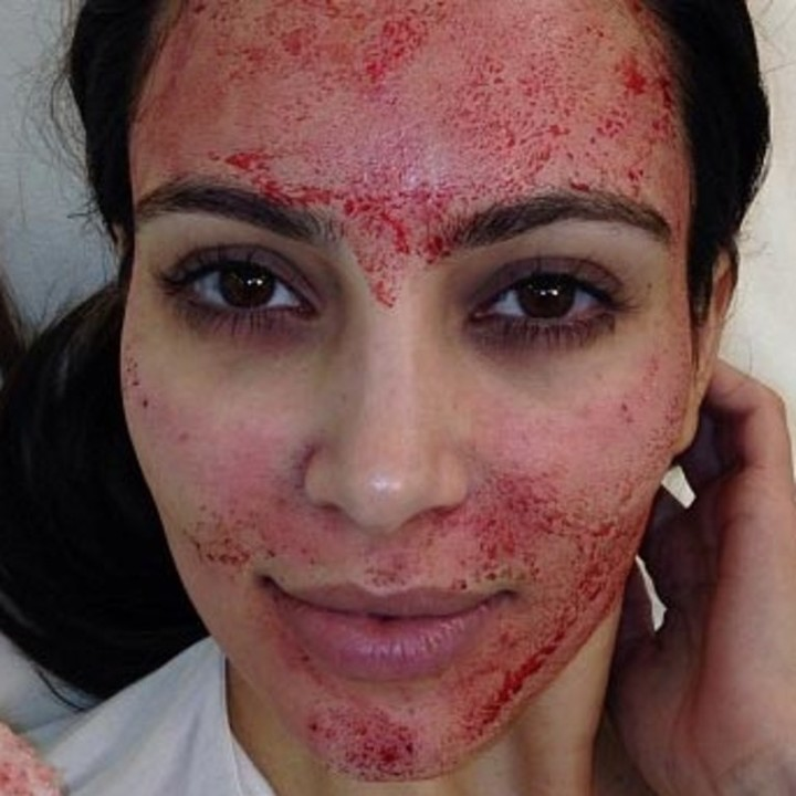 Kim Kardashian es una de las famosas que realizan terapia con sangre humana