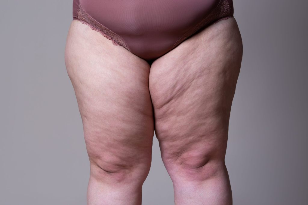 chubbier-legs-linked-to-lower-blood-pressure:-study