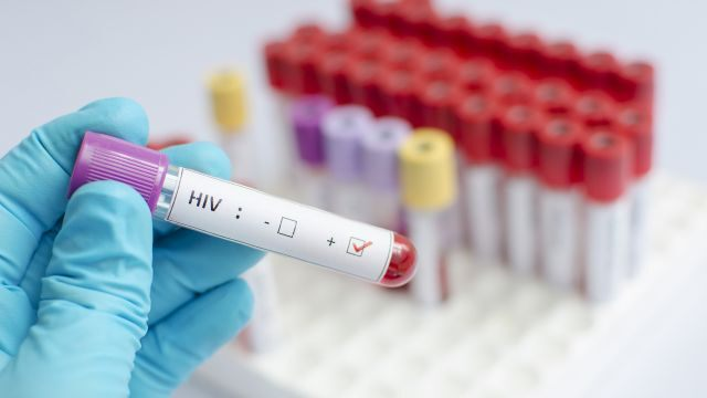 health-care-services-that-cover-hiv-in-the-south-disrupted-by-coronavirus-pandemic