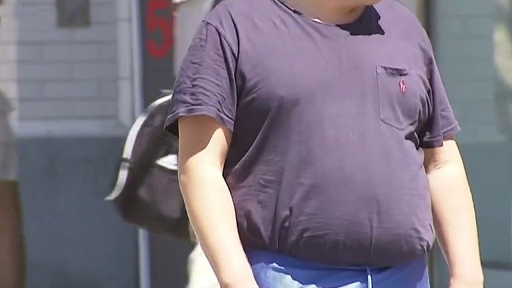 Being overweight now potential coronavirus risk factor, CDC says
