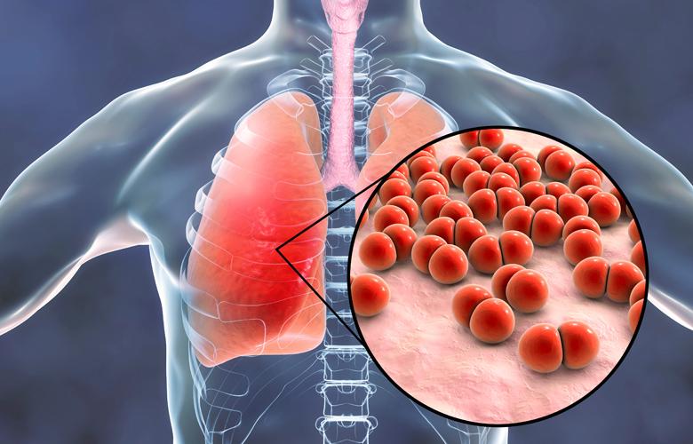 Τι είναι η πνευμονιοκοκκική νόσος και πόσο απειλεί την υγεία μας