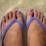 Självsprickor på fötter och fingrar – behandling och råd