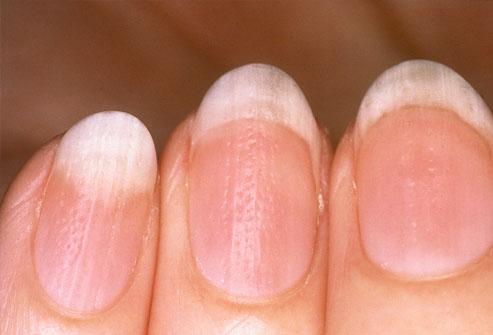 Aspectul unghiilor-Striații ondulate