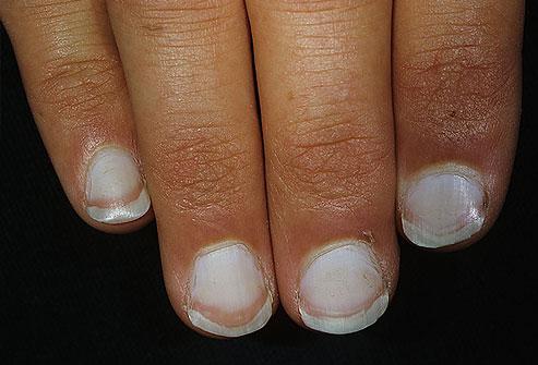 Aspectul unghiilor-Unghii albe