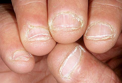 Aspectul unghiilor-Unghii roase