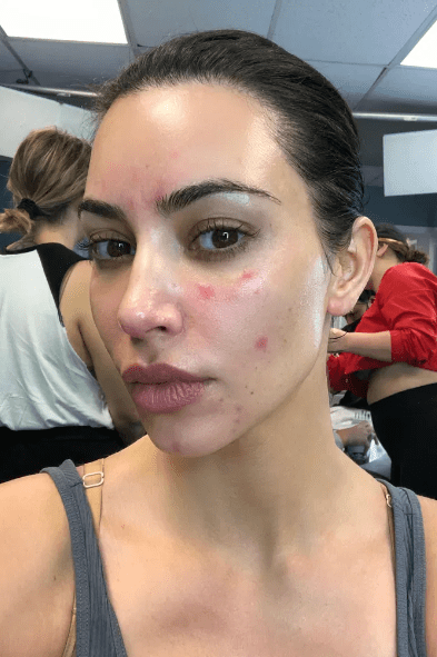 Kim Kardashian despre psoriazis- boala care i-a marcat 8 ani viața 5