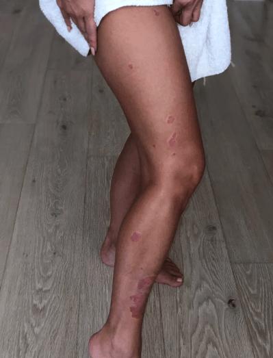 Kim Kardashian despre psoriazis- boala care i-a marcat 8 ani viața 3