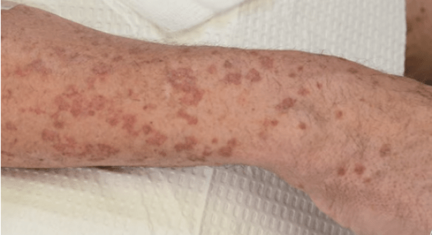 Ozonul l-a vindecat de Porokeratoză Actinică Superficială Diseminată și convulsii 2