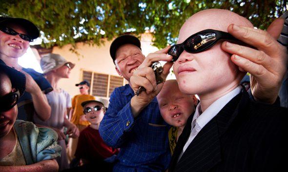 Mirando hacia un futuro mejor. Niños de un refugio para albinos en la cuidada de Shinyanga llevando gafas de sol con las que aliviar el sufrimiento al que siempre están expuestos.  Foto: Liron Shimoni.
