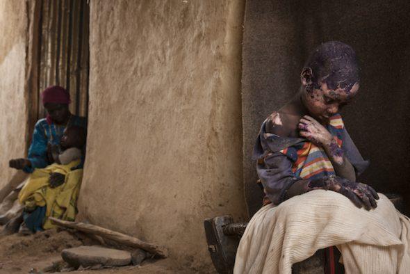 Temas contemporáneos, Segundo Premio. Fotografías individuales Pie de foto: Adriane Ohanesian, EEUU, Las montañas olvidadas de Sudan 27 de febrero de 2015. Adam Abdel, de 7 años, sufrió graves quemaduras cuando una bomba lanzada por un avión del gobierno cayó junto a la casa de su familia, en el territorio controlado por los rebeldes en Darfur. Adam salió disparado de la casa por la fuerza de la explosión y su ropa se incendió. Dos semanas más tarde sus quemaduras estaban todavía en proceso de curación. Era difícil conseguir un tratamiento debido a que el gobierno seguía negando en acceso a ONGs y personal de socorro al territorio controlado por los rebeldes . Los disturbios en Darfur comenzaron en 2003, después de que el gobierno del presidente Omar al -Bashir tomó medidas contra los rebeldes. Desde entonces, cientos de miles de personas han muerto y hay millones de desplazados.