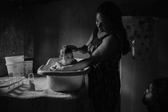 SÃO VICENTE DO SERIDÓ, BRAZIL. Adriana Cordeiro Soares de 30 años baña a su hijo João Miguel de 3 meses que nació con microcefalia causada por le virus Zika. (Foto: Lalo de Almeida)