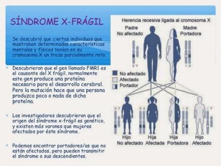 sndrome-x-fragil-4-638