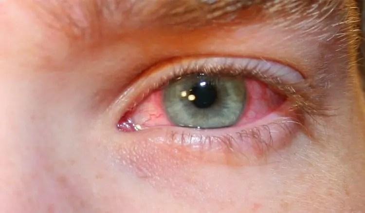 ojos-con-conjuntivitis