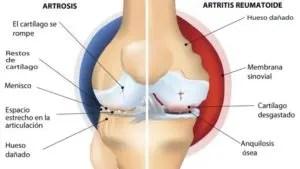 Imagen visual de las partes afectadas de una circulación según las distintas patologías.