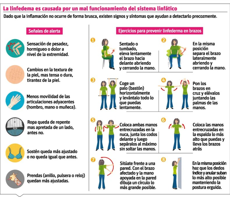 info-linfedema-tras-cancer-de-mama