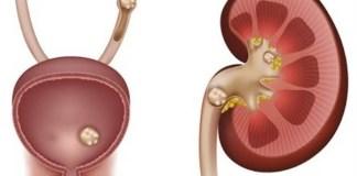 cálculos renales en riñones