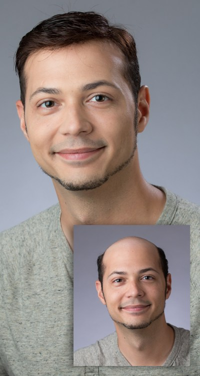 Man with full head of hair after hair loss replacement
