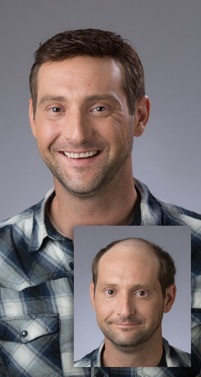 Excited man before and after hair regrowth system