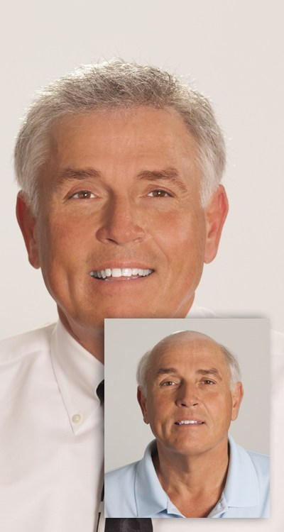 Older man before and after prp hair replacement