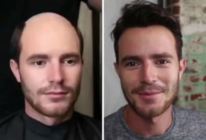 Before and after hair loss treatment baltimore