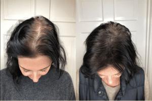 Eldroado Micropigmentation