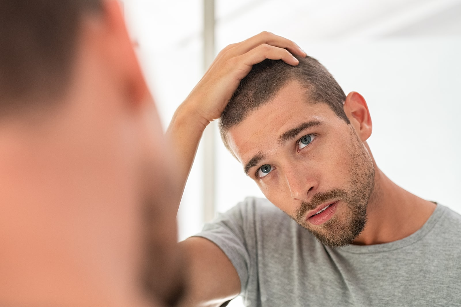 You are currently viewing Types of Hair Loss and Possible Causes
