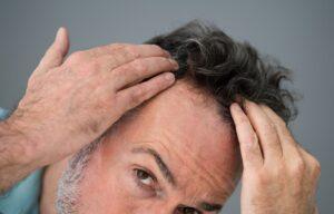 A man looking at his hair loss upclose.