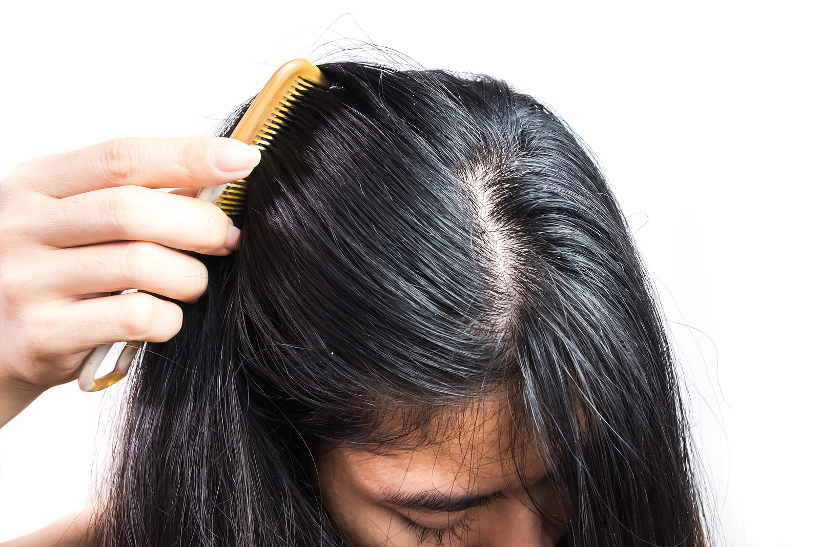 Read more about the article 5 Signs of Poor Scalp Health