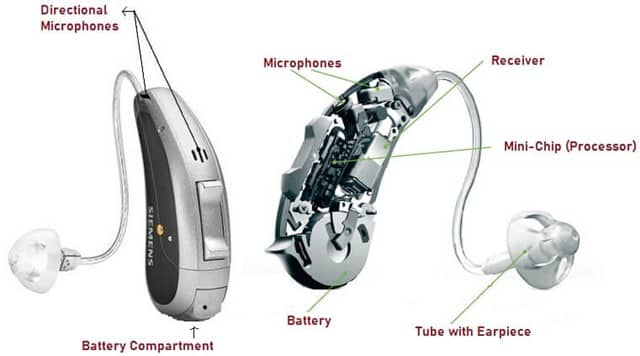 Components of Digital Hearing Aid