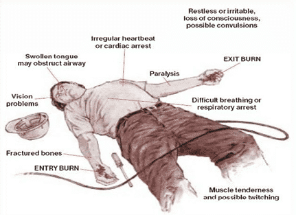 Severity of Injury in Electrical Shock