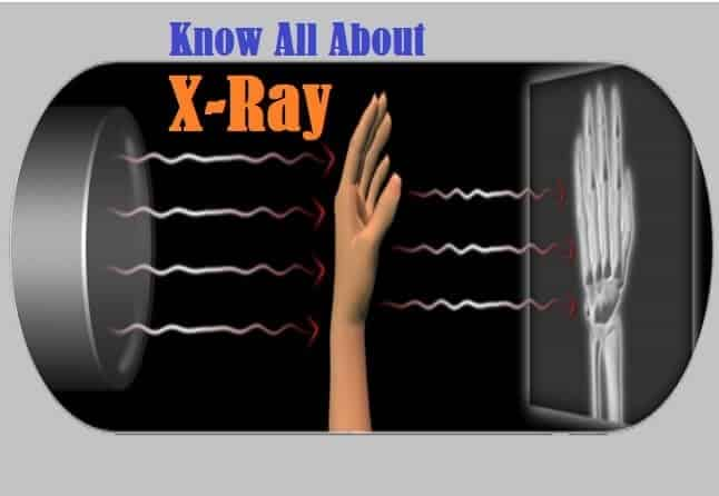 Introduction to X-Ray