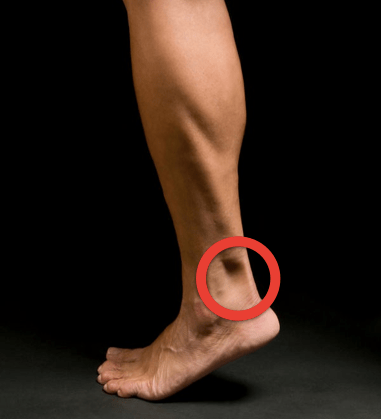 Ankle Hole Location