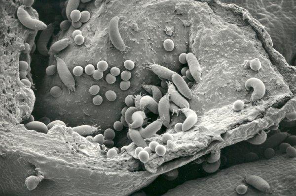Смородиновый почечный клещ под микроскопом