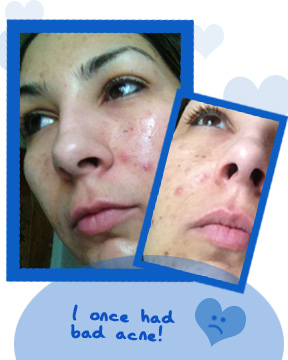 proactiv renewing cleanser review - Before Photo