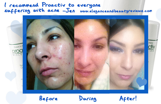 proactive review before and after photos