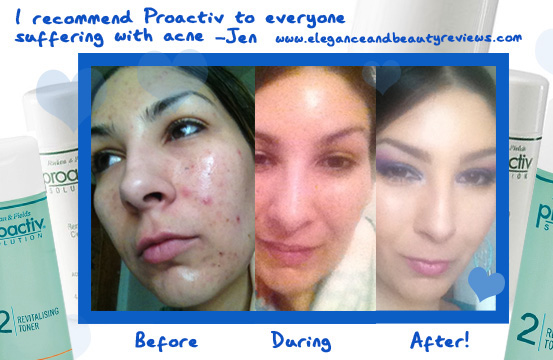 proactiv before and after photos