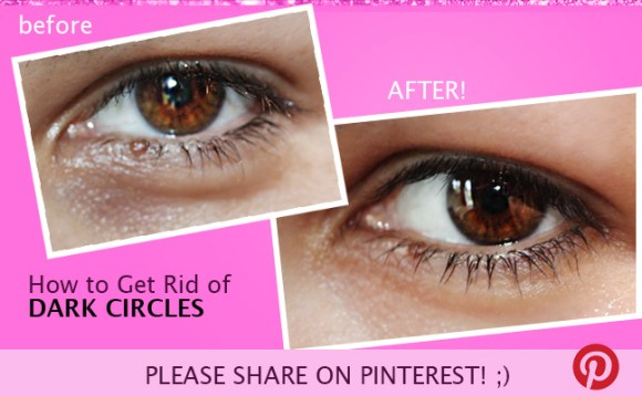 how to get rid of dark under eye circles fast naturally!