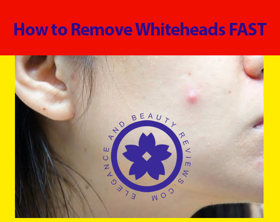 How to Get Rid of Whiteheads Fast at Home