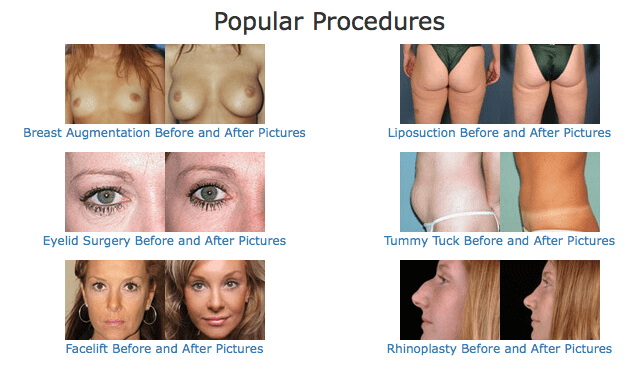before and after surgery photos