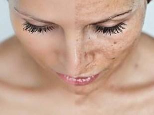 Tratamiento para las arrugas. Fotoenvejecimiento.