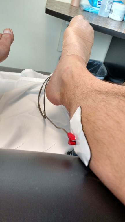 Electric stimulation therapy for my foot