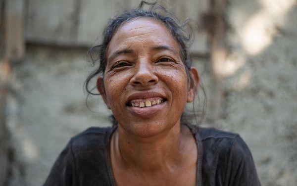 Dientes manchados: el problema que conecta a pueblos de Azua